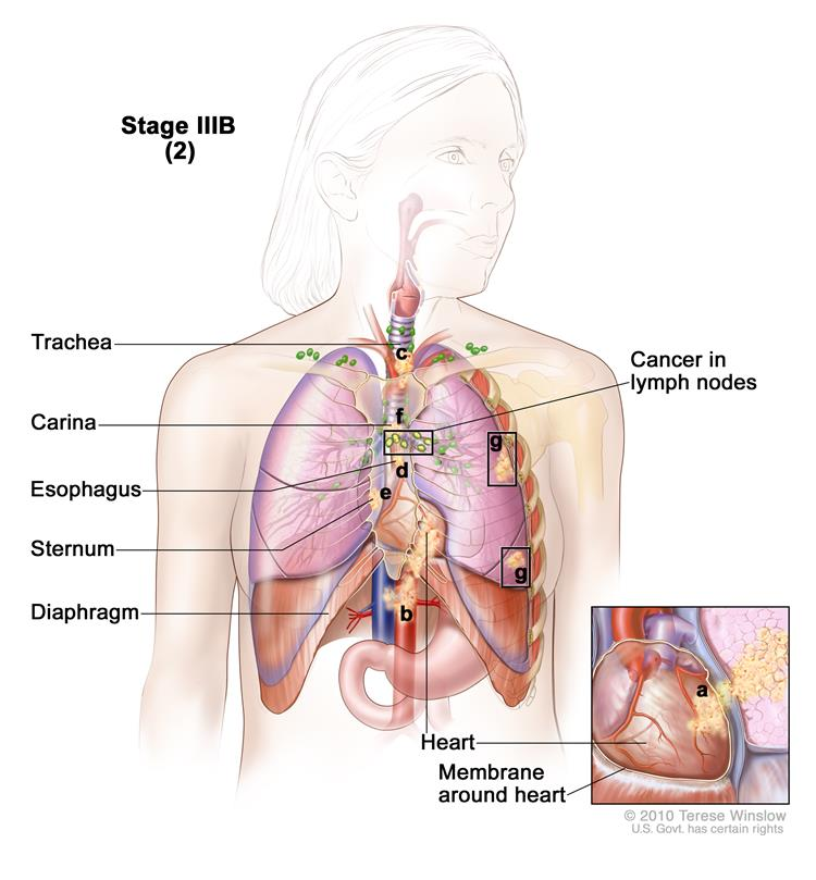 Stages Of Non Small Cell Lung Cancer