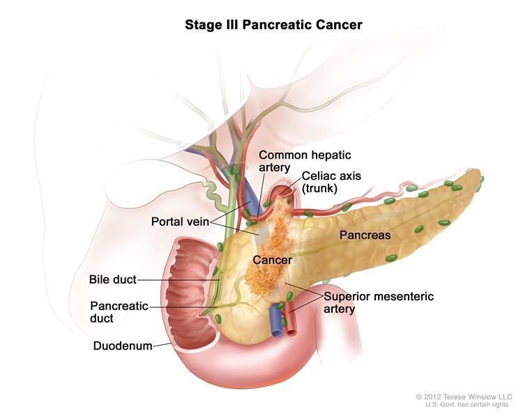 Pancreatic cancer xenograft, Pancreatic Cancer kako se leci hpv