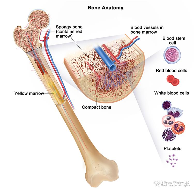 Adult Acute Lymphoblastic Leukemia All Is A Type Of Cancer In Which